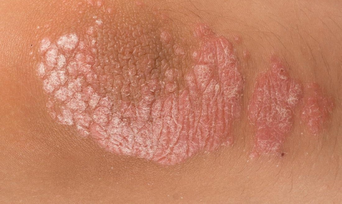 All You Need to Know About Psoriasis